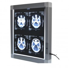 X Ray Film LED Illuminator View