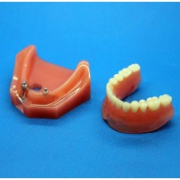 Dental Impant Study Model for Repair M-6007 For Study & Teach