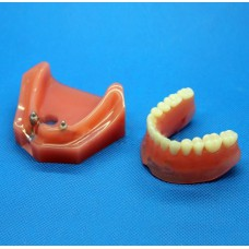Dental Impant Study Model for Repair M-6007 For Study And Teach