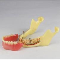 Dental Teeth Implant Model Of Jaw For Study & Teach M-2014b