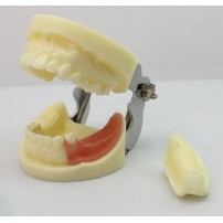 ENOVO Brand Dental Implant Study model with Removable Teeth