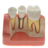 Analysis Model for Dental Implant M2017 For Study And Teach