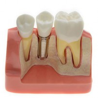 Analysis Model for Dental Implant M2017 For Study & Teach