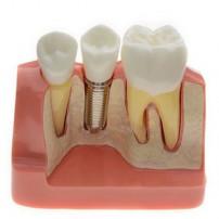Analysis Model for Dental Implant M2017 For Study & Teach