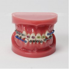Dental Orthodontics Teeth Malocclusion Correct With Teeth Bracket Standard Model M3005