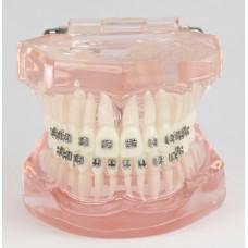 Dental Orthodontics Teeth Malocclusion Correct With Metal Bracket Standard Model M3001