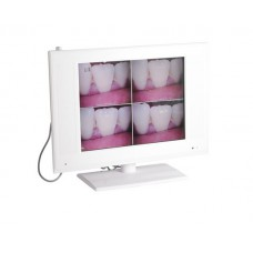 15 inch LCD High Resolution 1/4 SONY CCD Wired Intraoral Camera M-958